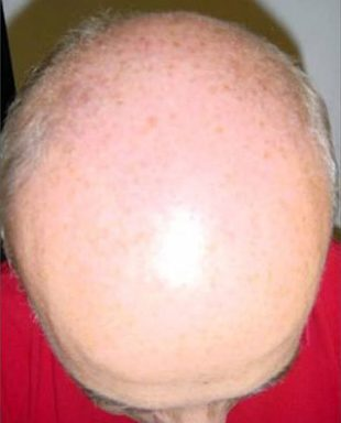 NeoGraft-Hair-Transplant-Before-After