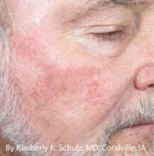 IPL-Facial-Vessels-Before-After-Male
