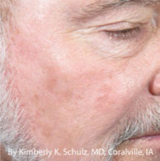 IPL-Facial-Vessels-Before-After-Male-Patient