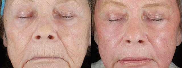 CO2 LASER: JUST ONE TREATMENT CAN TAKE YEARS OFF YOUR SKIN