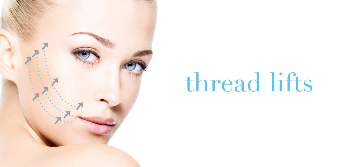 THREAD LIFTS: A NEW WAY TO LIFT SAGGING FACIAL CONTOURS
