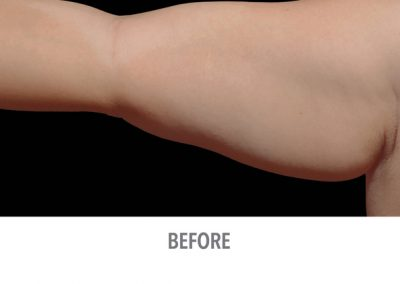 coolsculpting-arms-before-and-after-female1_03