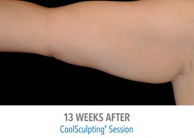 coolsculpting-arms-before-and-after-female1_04