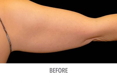 Coolsculpting-Arms-Before-After-Female