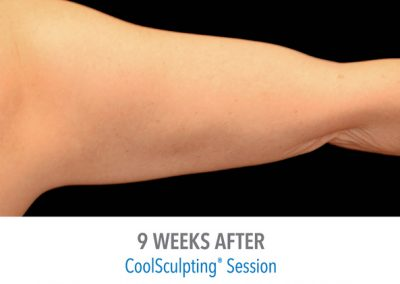 coolsculpting-arms-before-and-after-female_04