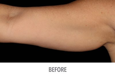 Coolsculpting-Arms-Before-After