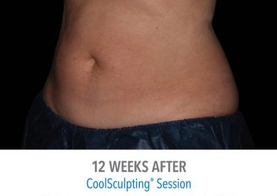 coolsculpting-before-and-after-female_04