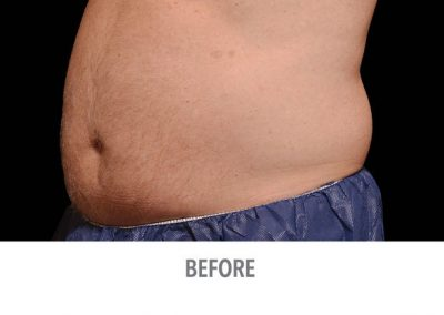Coolsculpting-Abdomen-Male-Before-After