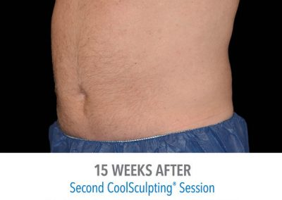 Coolsculpting-Abdomen-Before-After
