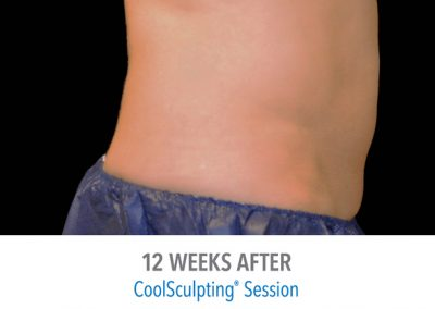 Coolsculpting-Adbomen-Before-After
