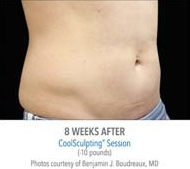 coolsculpting-before-and-after-male_04