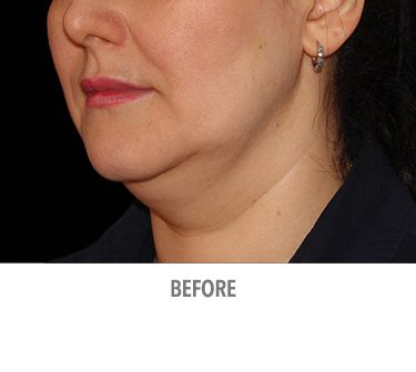 Coolsculpting-Fat-Reduction-Chin-Female