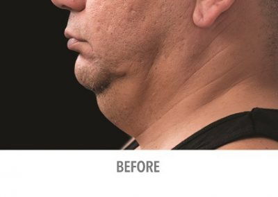 coolsculpting-fat-reduction-chin-male_03