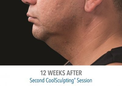 coolsculpting-fat-reduction-chin-male_04