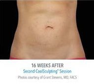 coolsculpting-stomach-before-and-after