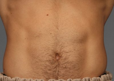 cooltone-before-and-after-abdomen2_02