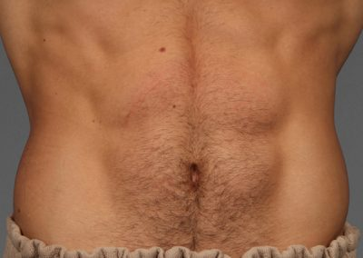 cooltone-before-and-after-abdomen
