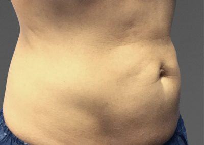 cooltone-before-and-after-abdomen3_02
