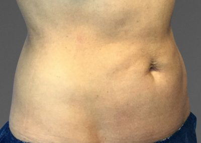 cooltone-before-and-after-abdomen3_04