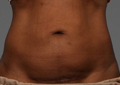 cooltone-before-and-after-abdomen_02
