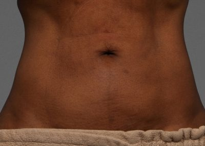 cooltone-before-and-after-abdomen_04