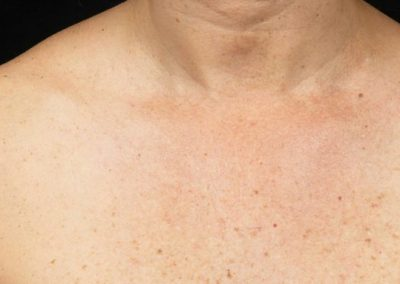 Fraxel-Before-After-Chest