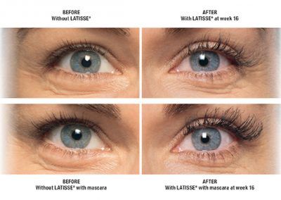 Lastisse-Lashes-Before-After-Patient