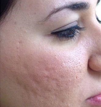 Microneedling Acne Scars After