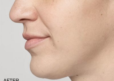 Injectable Filler Lips After