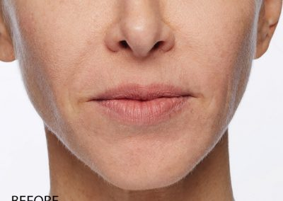 Injectable Filler Lips Before