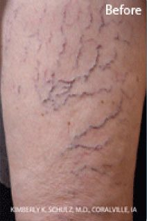 Sclerotherapy for Spider Veins Before
