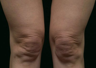 thermage-before-after-above-knees_02