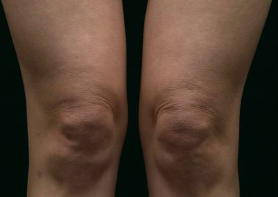 thermage-before-after-above-knees_04