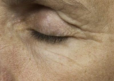 thermage-before-after-eyelid-lift1_02