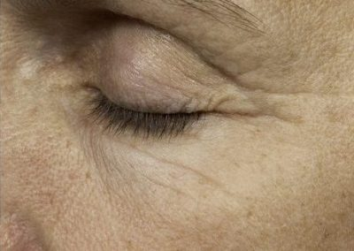 thermage-before-after-eyelid-lift1_05