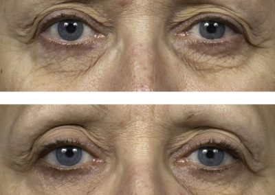 thermage-before-after-eyelid-lift_03