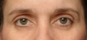 thermage-eyes-1_03