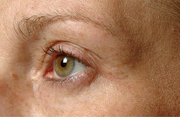 thermage-eyes-before-after