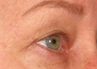 ultherapy brow lift after