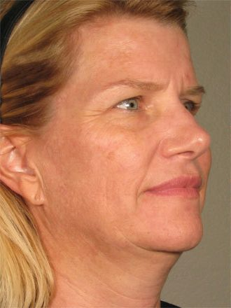 ultherapy-lower-face-before-after-female