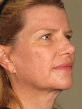 ultherapy-before-after-lower-face
