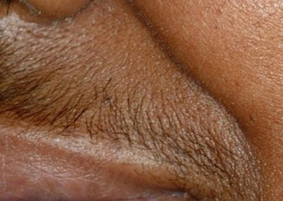 vectus-laser-hair-removal_01
