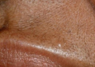 vectus-laser-hair-removal_02