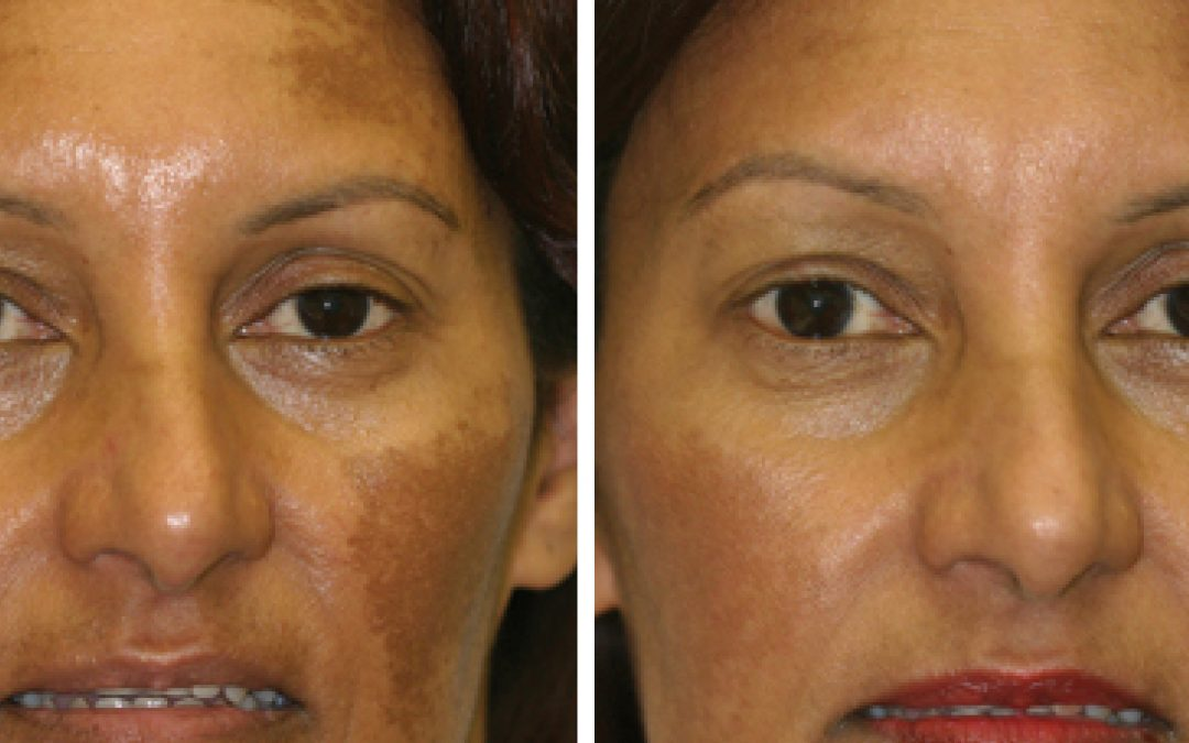 IS IT BROWN SPOTS OR MELASMA & HOW TO TREAT IT
