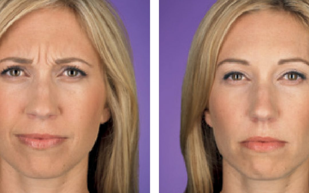 THE WRINKLE REPORT: WRINKLES AT REST VS. WRINKLES IN MOTION